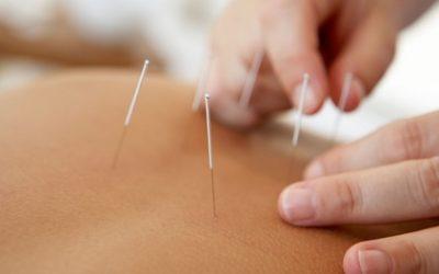 Akupunktur mit Zungen- und Pulsdiagnose bei Renshu Fachpraxis für Akupunktur und TCM (bis zu 76% sparen*)